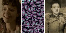 Henrietta Lacks kimdir ve hücreleri neden bu kadar önemlidir?