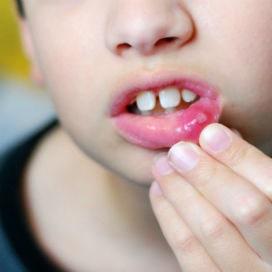 Aftöz Stomatit Nedir? Neden bazı insanların ağzında sürekli aft çıkar?