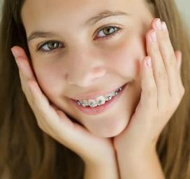 Diş teli dişi nasıl düzeltir?