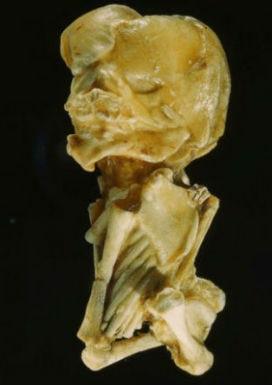 Lithopedion (Taşlaşmış Bebek) Nedir?Tehlikeli midir?